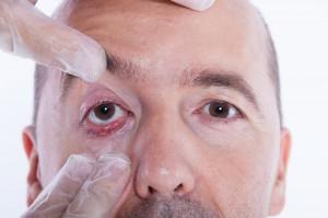 Augengeschwuer